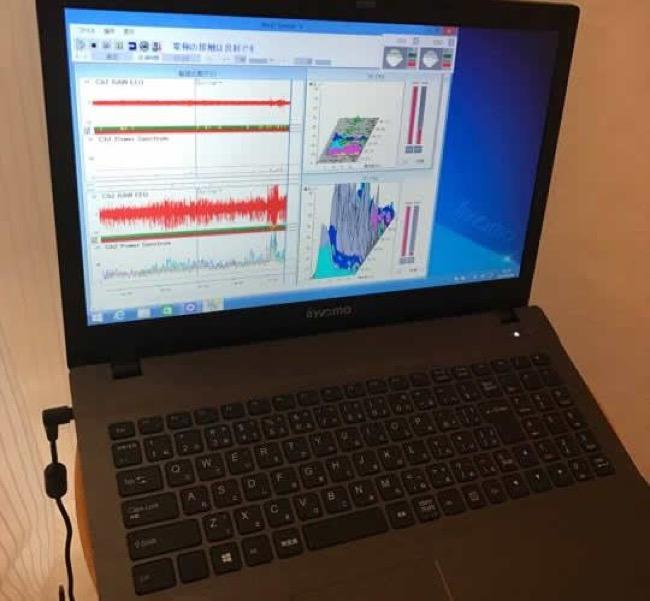 デンタルリフレクソロジー脳波測定レポート